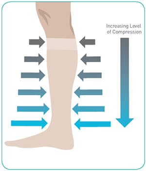 Illustration of increasing level of compression down leg