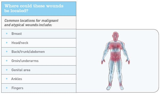 Wound Location Chart